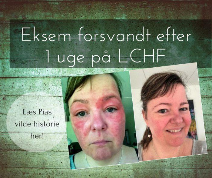 Pias uforklarlige udslæt forsvandt efter 1 uge på LCHF!