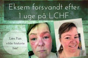Eksem, hudlidelser og udslæt - Pias voldsomme og uforklarlige eksem forsvandt efter én uge på LCHF