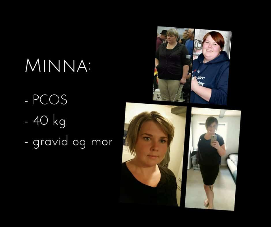 Minna fik PCOS - tabte sig 40 kg og blev gravid. Læs hendes vilde historie her: