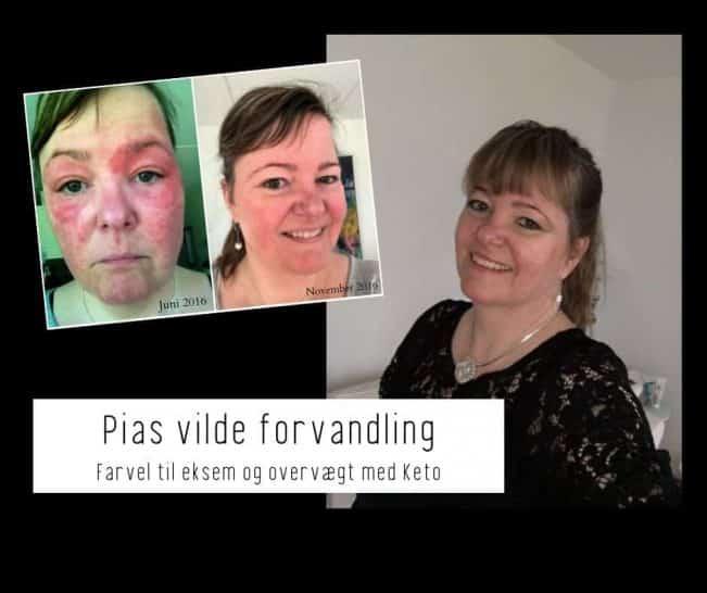 Pia hudlidelse / eksem forsvandt med Keto sammen med 15 kg overvægt
